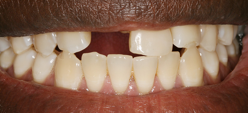 Aloys impianto dentale