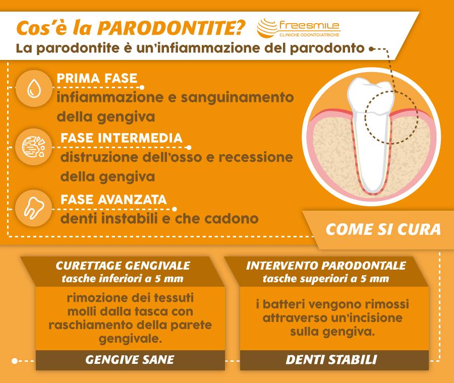 Infografica - curare la parodontite
