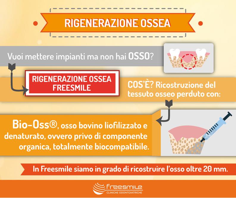 infografica rigenerazione ossea dentale