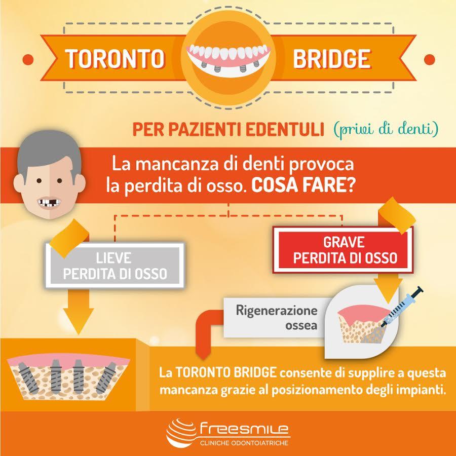 Toronto Bridge: se manca l'osso?