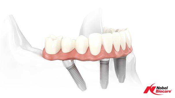 Impianti dentali Branemark