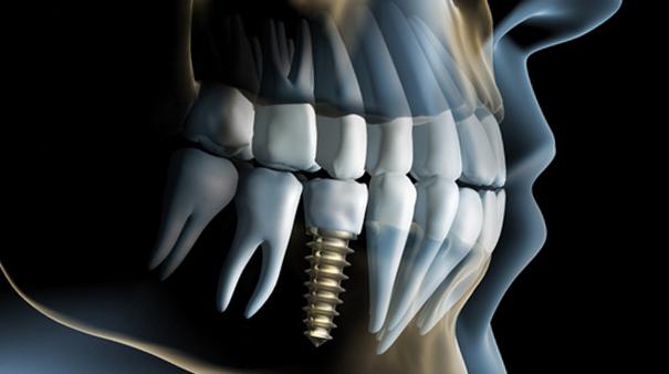 Implantologia transmucosa - flapless