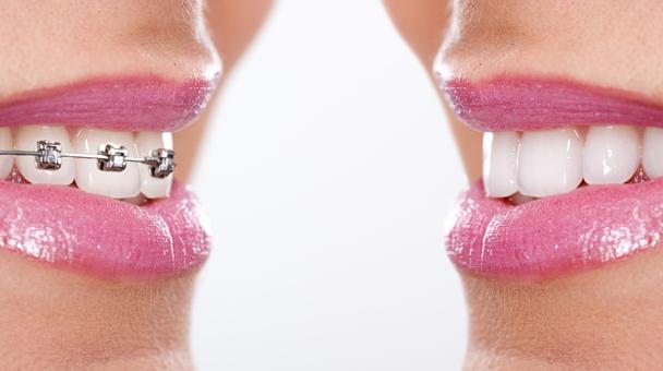 Allineamento dei denti