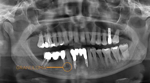 Granuloma dentale: come curare l'infezione apicale della radice, sintomi e terapie