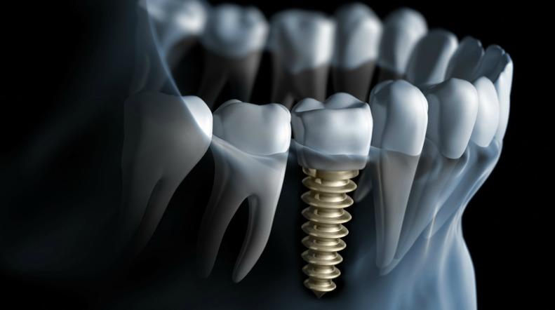 Osteointegrazione e durata di un impianto dentale