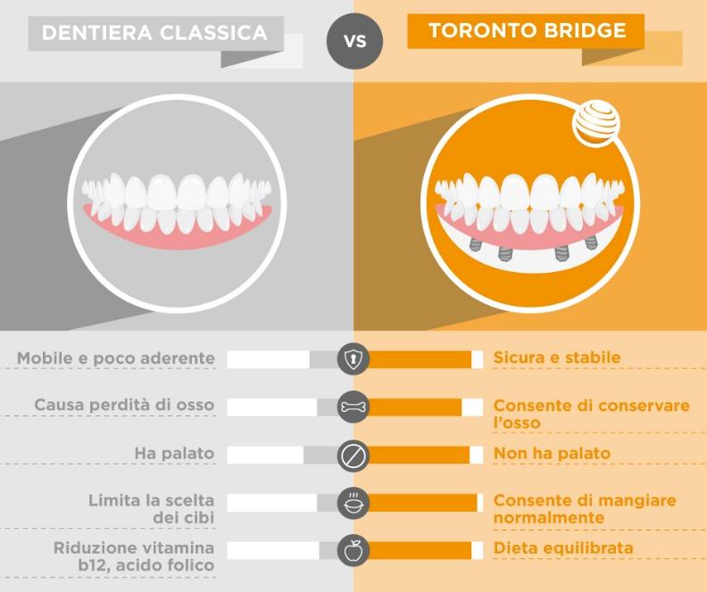 Toronto Bridge VS Dentiera - Infografica