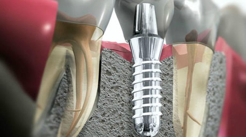 Prezzi impianti dentali Roma