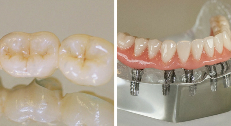 corone in zirconio ceramica