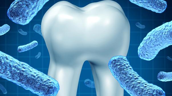 Malattia parodontale o parodontite detta comunemente