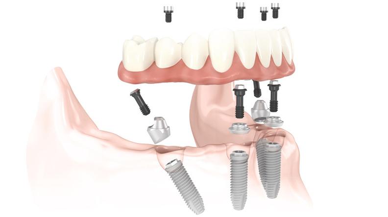 Implantologia All-on-4®: dalla Clinica Malo a Freesmile
