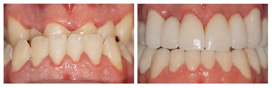 faccette dentali - veneers